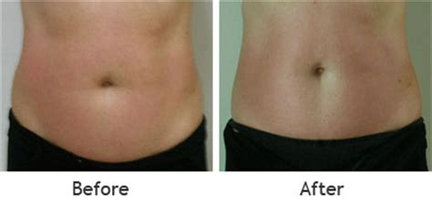 lipo light laser treatment reviews laser lipo reviews non invasive the art of beauty