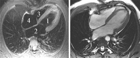 radiologia san matteo pavia istituto di radiologia san matteo istituto di radiologia