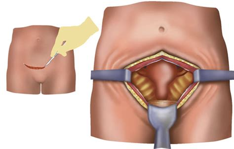 abdominal muscles after c section post hysterectomy pain relief