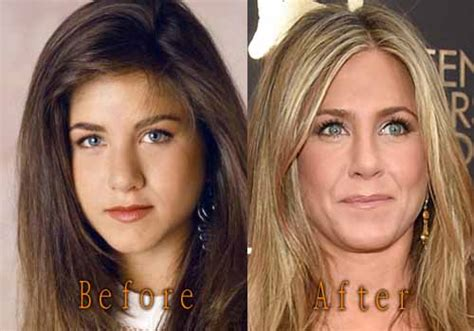 Did Aniston Get Implants by Aniston Plastic Surgery Nose Before And