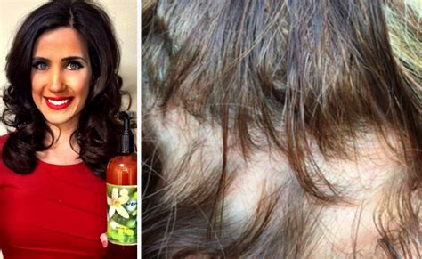 best wen for thin hair women say their hair is falling out in chunks after using