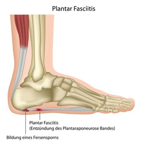 planters fasciitis symptoms plantar fasciitis surgery injury causes symptoms and