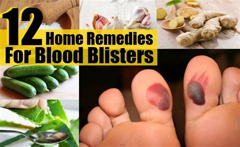 12 home remedies for blood blisters diy health remedy
