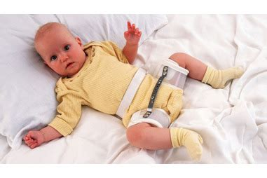 how can a live with hip dysplasia hip dysplasia in babies pregnancy birth and baby