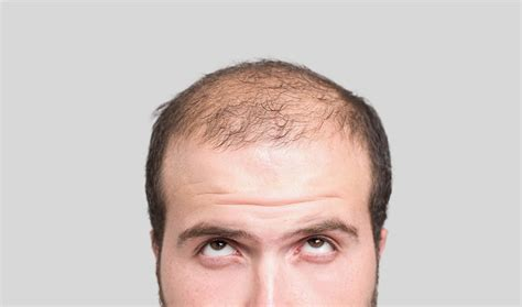 losing hair hair loss propecia carries risk of losing something else nbc news