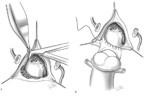 aortic mitral curtain surgical management of infective endocarditis intechopen