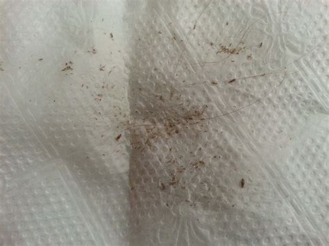 pubic hair comb services info potomac lice lady