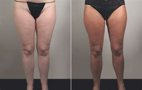 Extreme weight loss jami skin condition image 7