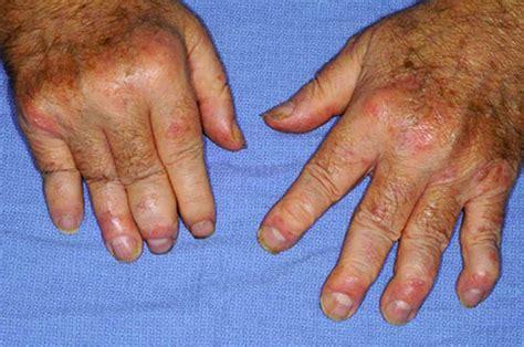 scalp psoriasis the psoriasis and psoriatic arthritis psoriasis appearance causes types symptoms treatment