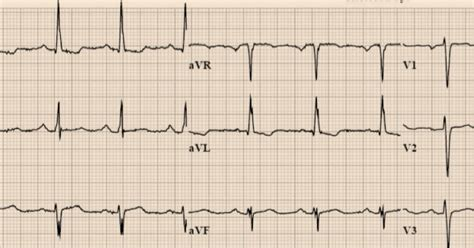 lvh pattern dr smith s ecg blog apparent pseudo stemi patterns are