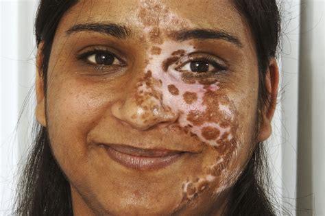 vitiligo images vitiligo nhs