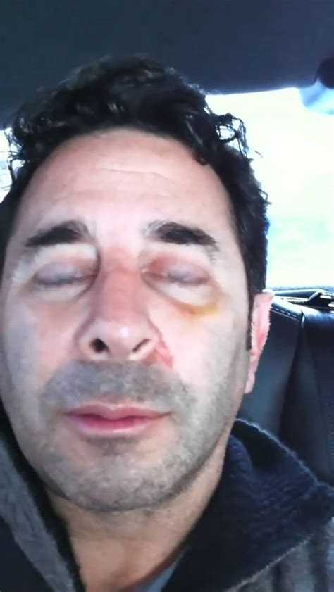 dr nassif dr paul nassif day 12 recovery rhinoplasty journal part