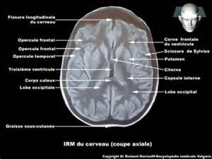 image photo cerveau i r m en coupe axiale neurologie