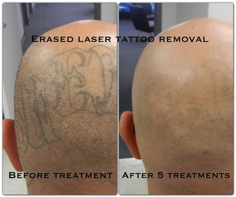 erased tattoo removal after the 5th treatment erased removal las vegas