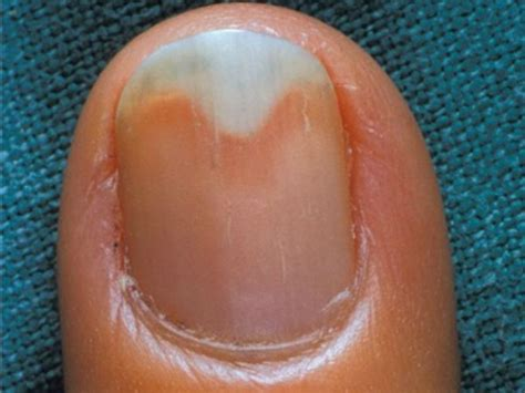 split nail bed split nail bed 28 images 25 best ideas about hair and