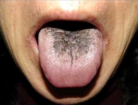 health warnings your tongue may be telling you home and