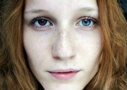 heterochromia iridum, when two eyeballs different colors