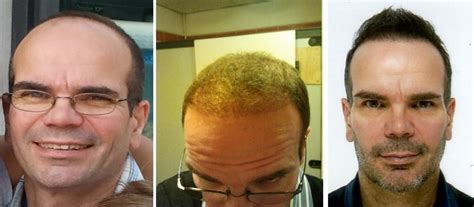hair transplant before and after before and after fue hair transplant