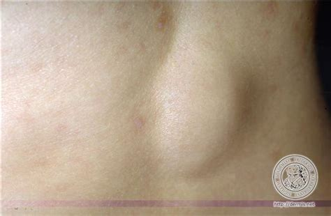 lipoma removal cost lipoma tips page 231