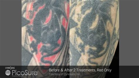 red ink tattoo removal 532 nm targeting ink reset room laser