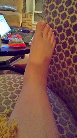 one foot swollen after c section post partum lost and posts on pinterest