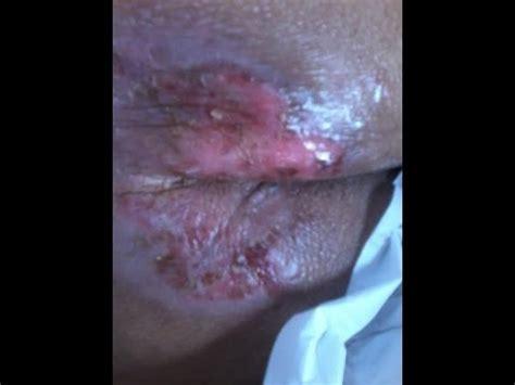 Decubitus Bed decubitus ulcer dekubitus chronic bed sore pressure