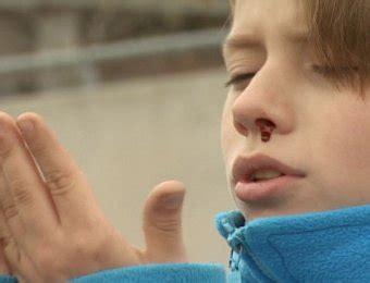 cortar hemorragia nasal trucos ingeniosos para tu dia a dia si te sangra la