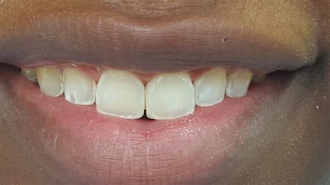 fixing gaps between front teeth