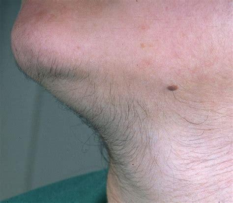 female pubic hair growth hirsutism الشعرانية