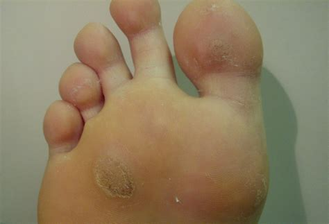 Start Of Planters Wart by Plantar Wart Treatment Klayman Foot Laser Clinics