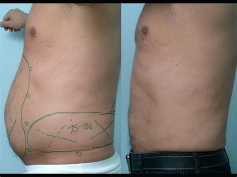 lipo after c section before after pictures salt lake city utah gateway