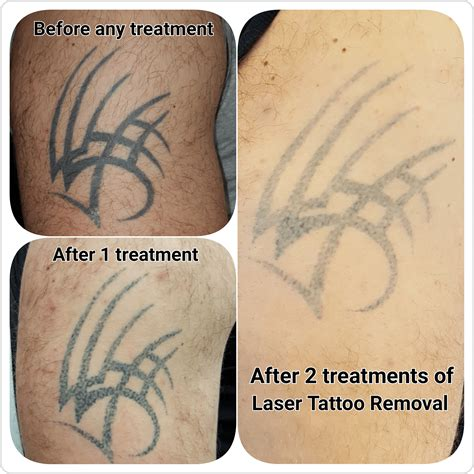 how to treat laser tattoo removal gallery c h laser treatments removal gloucester