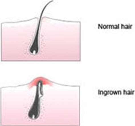 ingrown hair diagram soap for keratosis pilaris