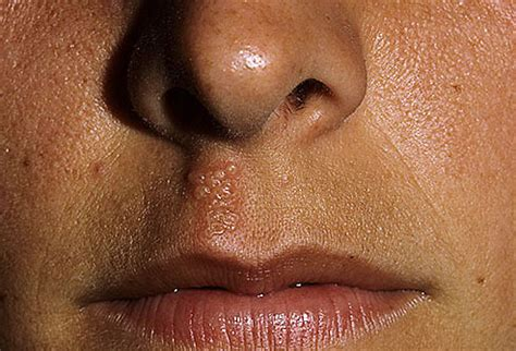 cold nose dental pictures gum disease tongue problems cancer tooth erosion and more