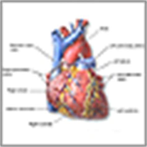 hypertrophic cardiomyopathy medlineplus encyclopedia
