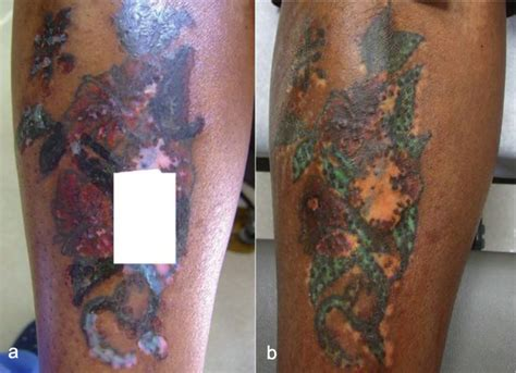 laser removal in skin types methods