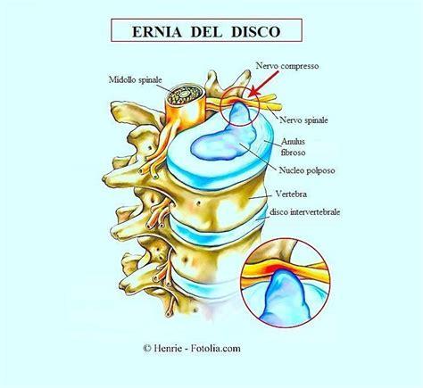 cuscino per ernia infiammazione nervo sciatico sintomi rimedi e cura