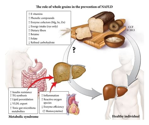 whole grains for liver whole grains may an impact on nonalcoholic fatty