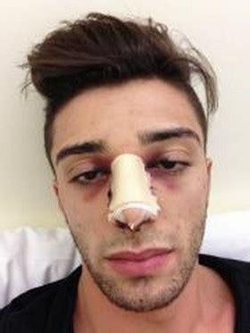 gonfiore labbra interne motogp andrea iannone operato al naso