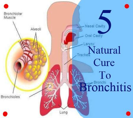 Does Detoxing Make You Cough by 5 Cure To Bronchitis How To Cure Bronchitis