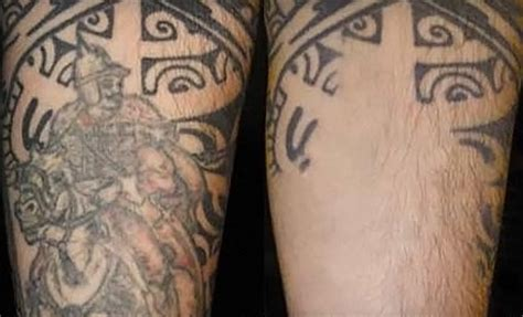 northeast laser tattoo removal northeast laser removal minneapolis mn groupon
