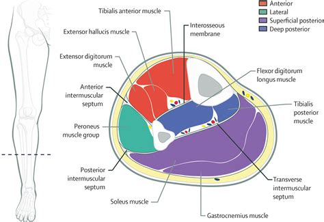 cross sectional anatomy gastrocnemius muscle cross sectional anatomy diagnosis and