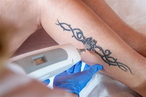 is tattoo removal painful what are the management options for laser removal