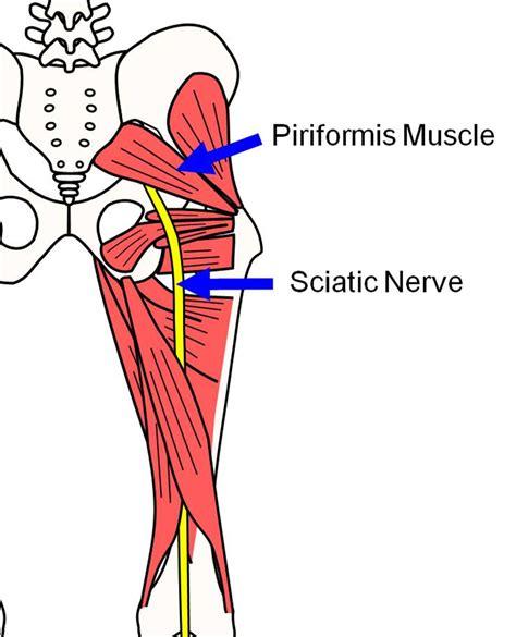 piriformis diagram sciatica causing you problems pro am sports injury