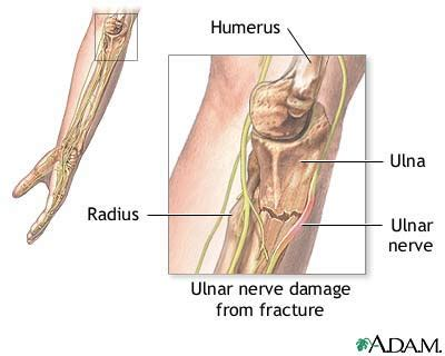 hitting nerve in elbow ulnar nerve dysfunction overview causes health32