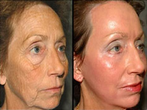 Humphrey Hair Loss Serum Others before and after pictures using serum and moisturizer by