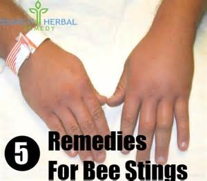 bee sting relief home remedies 5 remedies for bee stings search herbal home remedy