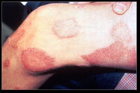 leprosy skin lesions leprosy kirstyn e s weblog