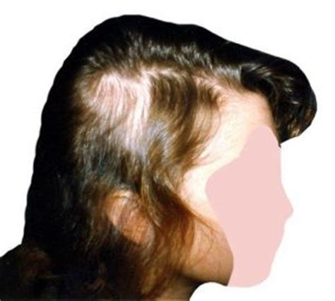 pattern of hair loss in lupus lupus hair loss gallery