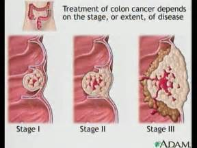 healthy living gets colon cancer screening
